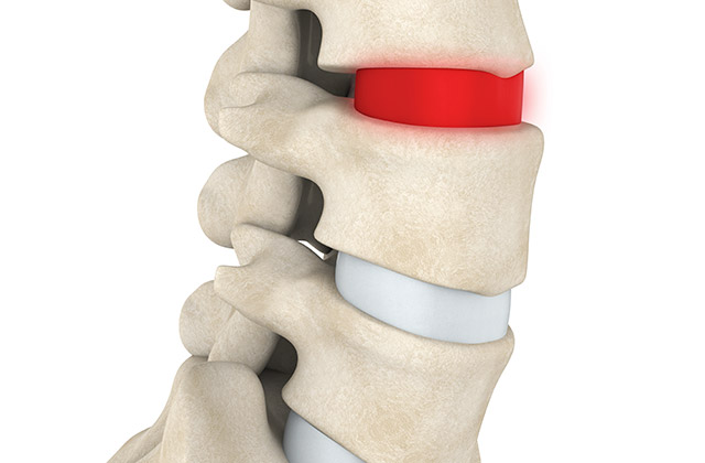 Assessing a spinal bulging disc